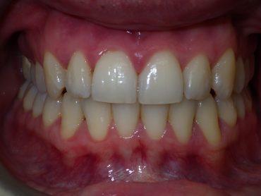 hidden braces attached front  view